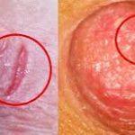 Признаки молочницы на сосках, причины, как лечить кандидоз сосков