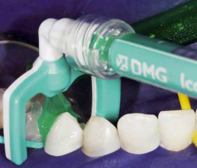 Лечение кариеса у детей: система Аквакат, лечение озоном, лазером, без бормашины