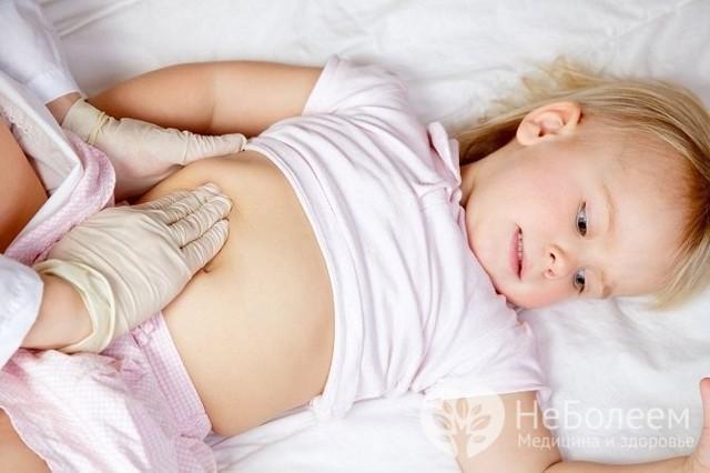 Острый аппендицит у детей: симптомы, причины и лечение