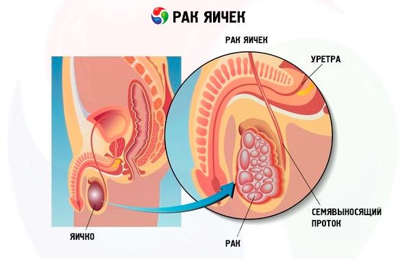 Рак яичка: классификация, стадии, симптомы, причины развития, диагностика и методы лечения