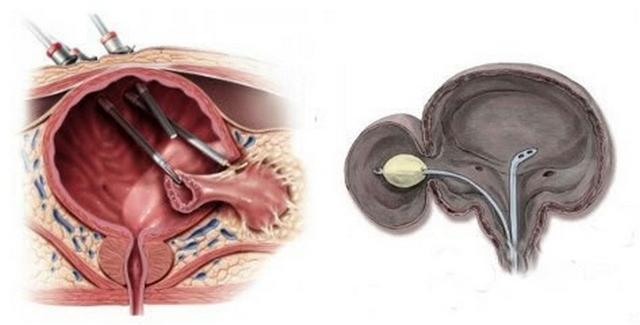 Дивертикул мочевого пузыря: что это такое, симптомы, причины и лечение
