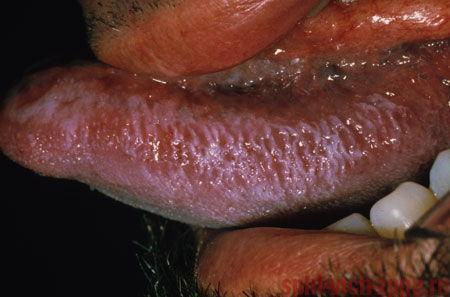 Язвы во рту: причины и лечение в домашних условиях, фото, язвы во рту при ВИЧ