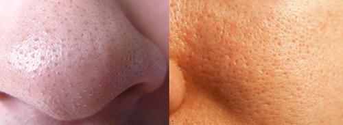 Расширенные поры на лице: как избавиться в домашних условиях, уход за пористой кожей