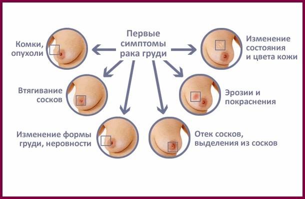 Листовидная опухоль молочной железы: причины, симптомы, лечение, операция