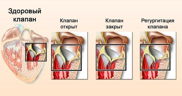 Отчего синеет носогубный треугольник у взрослого и чем опасен пролапс митрального клапана 1 степени