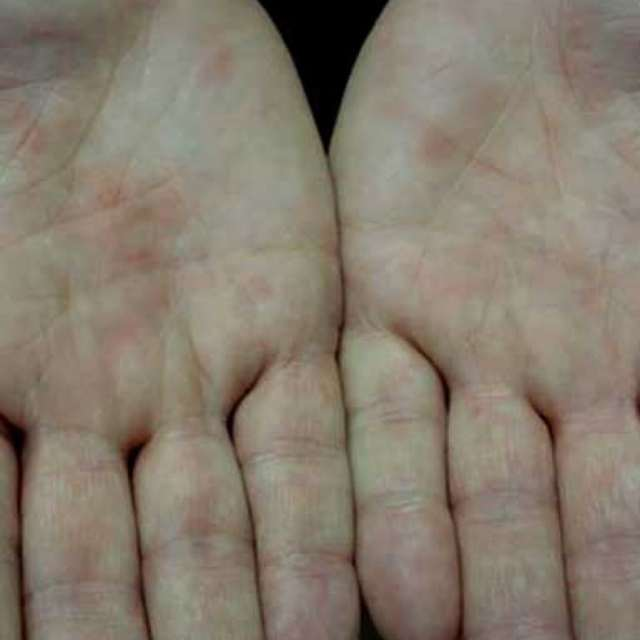Иерсиниоз: что это такое, симптомы и лечение, фото сыпи