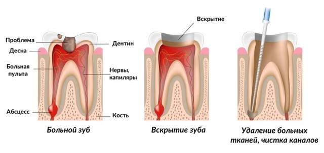 Пломбирование зубных каналов: как проводится, боли после пломбирования