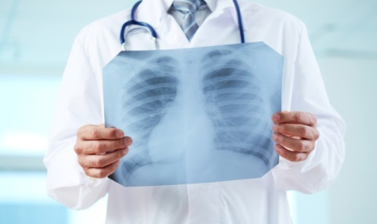 Компьютерная томография легких, суть метода, показания, относительные противопоказания, сравнение с обычной рентгенографией