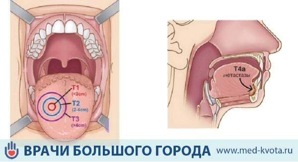 Рак языка: признаки и симптомы, фото начальной стадии, лечение, сколько живут