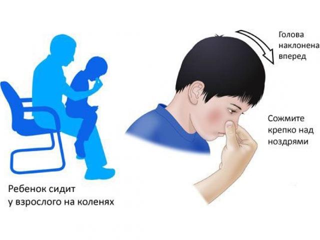 Как остановить кровь из ранки
