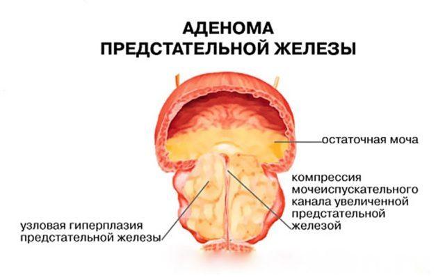 Камни в простате: симптомы и лечение камней предстательной железе