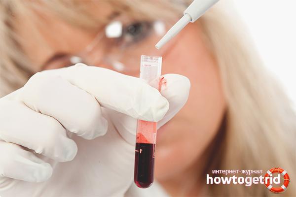 Разжижение крови – показания к проведению, препараты для разжижения крови, разжижение крови народными средствами или с помощью аспирина.