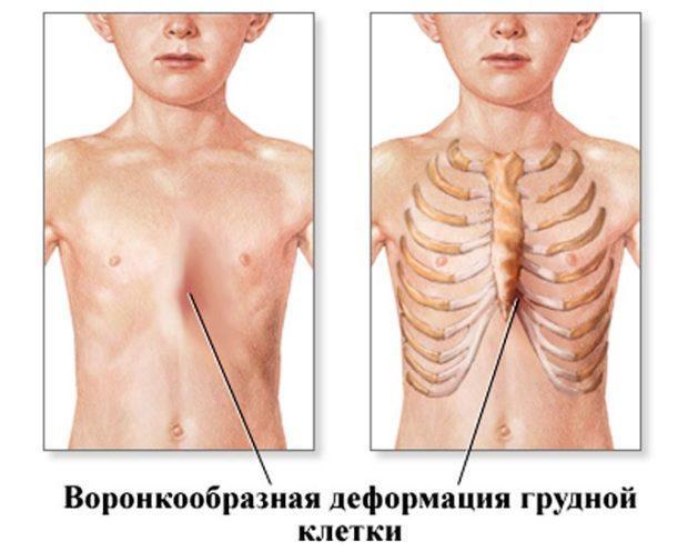 Воронкообразная грудная клетка у ребенка: фото, лечение без операции, операция