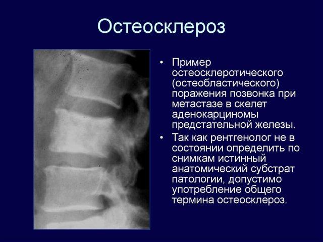 Остеосклероз суставов, позвоночника, что это такое, симптомы, лечение