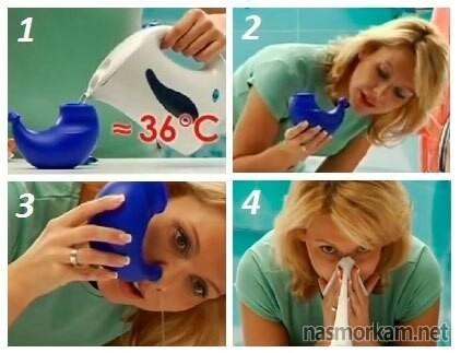 Промывание носа в домашних условиях: как сделать промывание носа, растворы для промывания носа при гайморите