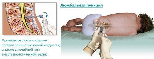 Какие осложнения могут быть после пункции спинного мозга