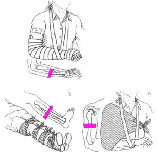 Первая помощь при переломах костей: что делать при переломе открытом или закрытом.