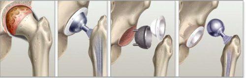 Посттравматический артроз тазобедренного сустава: степени, лечение, инвалидность