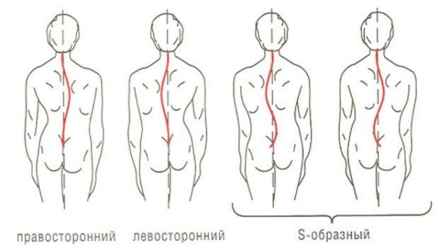 Лечение сколиоза позвоночника: упражнения, массаж, лечебное плавание, мануальная терапия