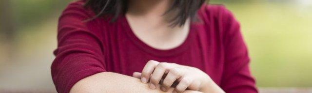 Мокнущий дерматит: лечение, профилактика, причины развития
