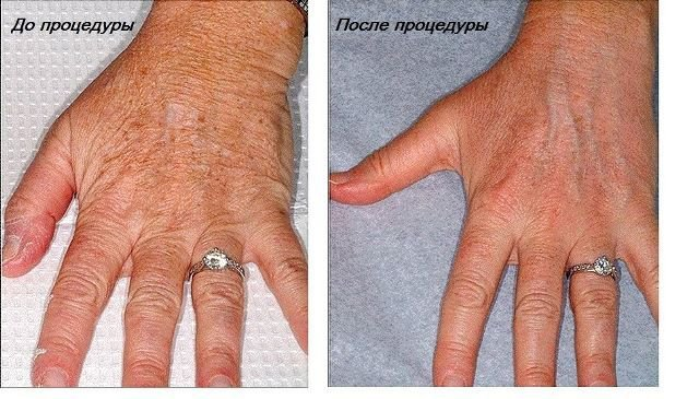 Дряблость кожи рук – дефект, который исчезает при выборе правильной методики.