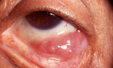 Саркома печени: симптом и лечение, стадиии, прогноз, операция при саркоме печени