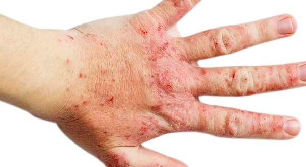Как диагностировать аллергию