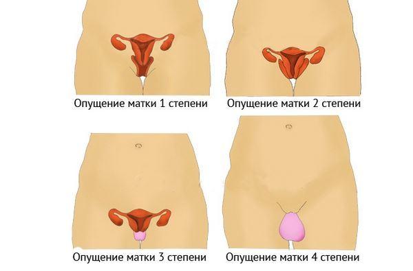 Опущение матки: симптомы, лечение, последствия, гимнастика и упражнения при опущении матки