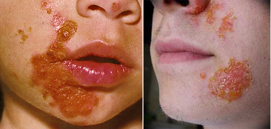 Глубокая пиодермия: причины, симптомы, лечение у людей