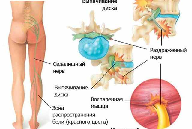 Что такое ишиас: симптомы, причины ,лечение в домашних условиях