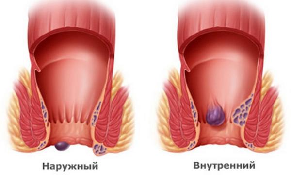 Лечение геморроя у мамы при грудном вскармливании, какие лекарства можно кормящим мамам