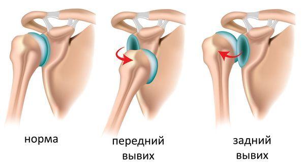 Вывих сустава — симптомы и лечение, первая помощь при вывихе сустава
