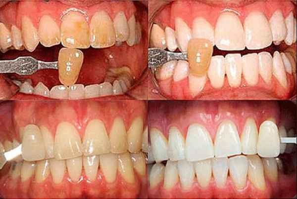 Почему на зубах появляются белые пятна и как вылечить эмаль