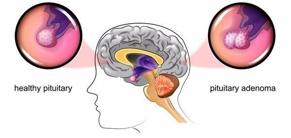 Болезнь Иценко-Кушинга – симптомы, диагностика и лечение синдрома Иценко-Кушинга