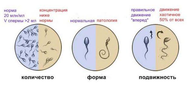 Криптоспермия: что это, как лечить криптоспермию, беременность и криптоспермия