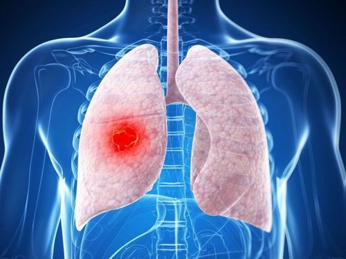 Рак: симптомы на ранних стадиях, признаки и первые проявления онкологических заболеваний