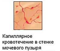 Интерстициальный цистит, критерии диагноза, диагностика, лечение и современные препараты, физиотерапия, прогноз