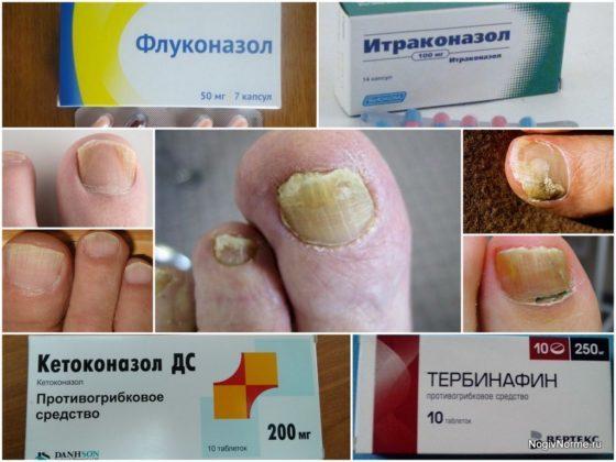 Чем лечить грибок ногтей на ногах: эффективные лекарства от грибка ногтей