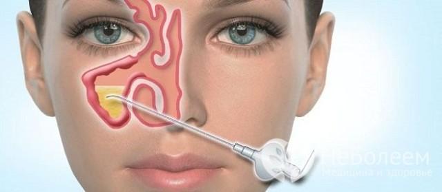 Синусит: причины возникновения, диагностика, симптомы, лечение и профилактика С