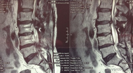 Когда делать МРТ после обнаружения эностоза?