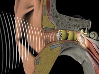 Кондуктивная тугоухость: причины, симптомы, лечение   ОкейДок
