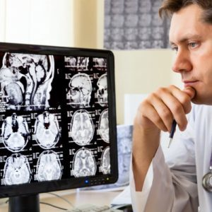 Алкогольные энцефалопатии головного мозга: симптомы, лечение, прогноз