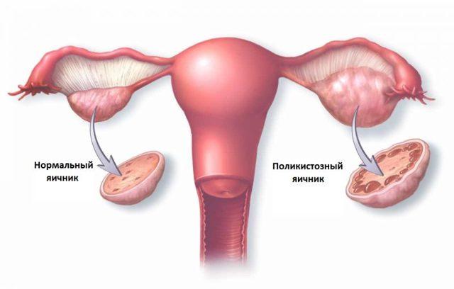Поликистоз яичников: симптомы, причины, лечение поликистоза яичников