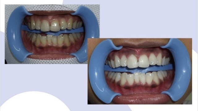 Отбеливание зубов системой бьенд