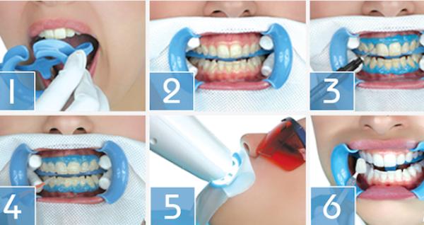 Профессиональное отбеливание зубов системой beyond polus: плюсы и минусы