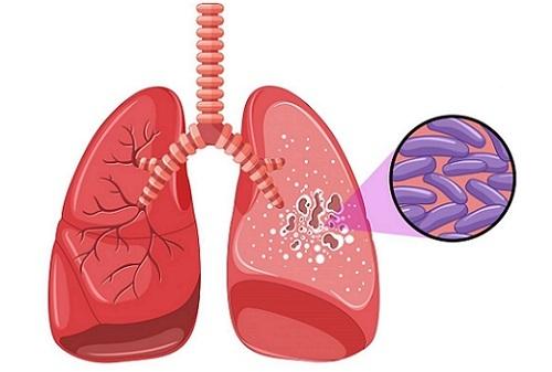 Кашель по утрам и после сна у некурящего взрослого и ребенка: причины, чем лечить