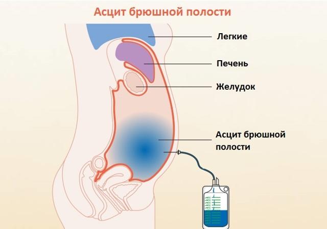 Ревмокардит – признаки, лечение ревматического миокардита, симптомы первичного ревмокардита.