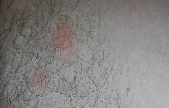 Почему появляются красные пятна на лице, шее и в паху?