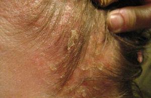 Себорейный дерматит — лечение себорейного дерматита лица, волосистой части головы, туловища