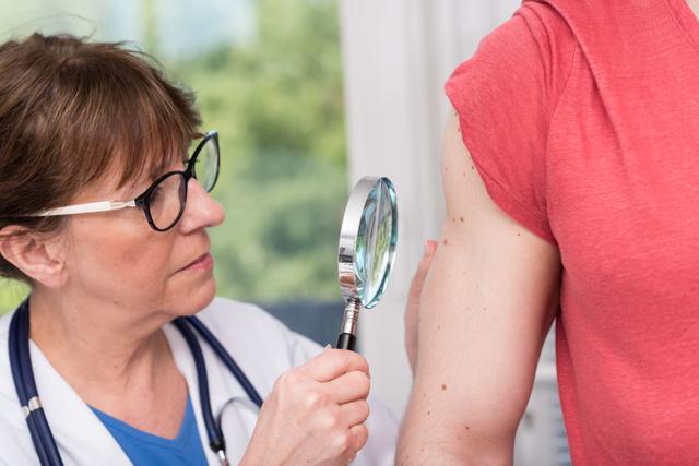Лейкодерма: что это такое, отличие от витилиго, фото, симптомы, лечение